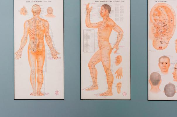 medizinisches Wandbild über Akupunkturpunkte und Meridiane des Menschen